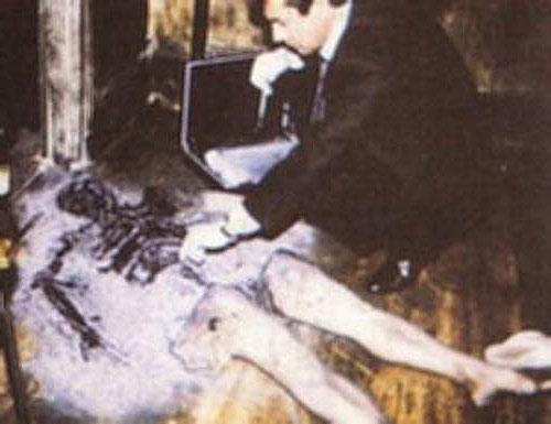 a research on spontaneous human combustion or shc 'first irish case' of death by spontaneous combustion  out other research in an  into the category of spontaneous human combustion,.