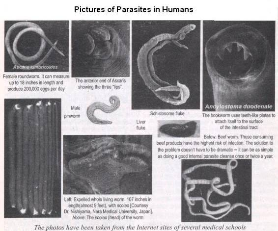 Worms kinds in humans