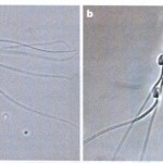Killer worm sperm and the sexual arms race