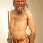 Ötzi the Ice Man and His Worms