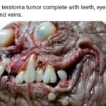 Teratoma Tumor: The demonic mass that grows teeth, eyes, feet, and organs
