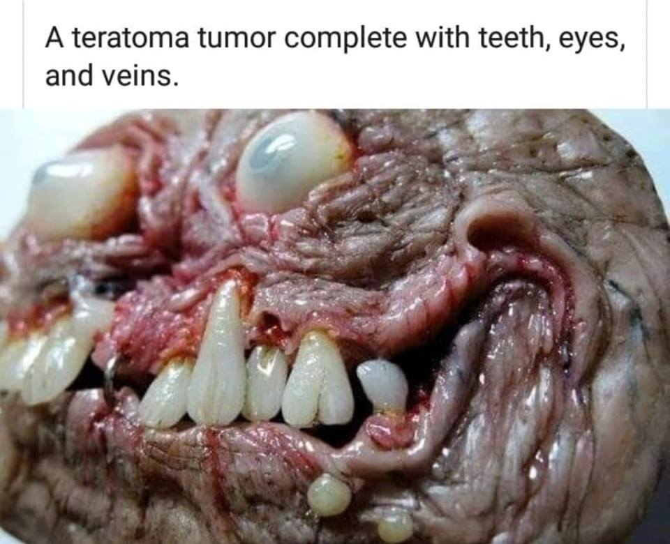 Teratoma Tumor: The demonic mass that grows teeth, eyes, feet, and