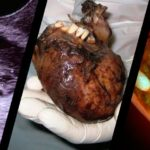 How teratoma tumors control the minds of its victims