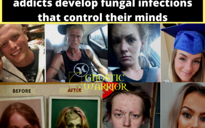 Black Tar Demons: How heroin addicts develop fungal infections that control their minds